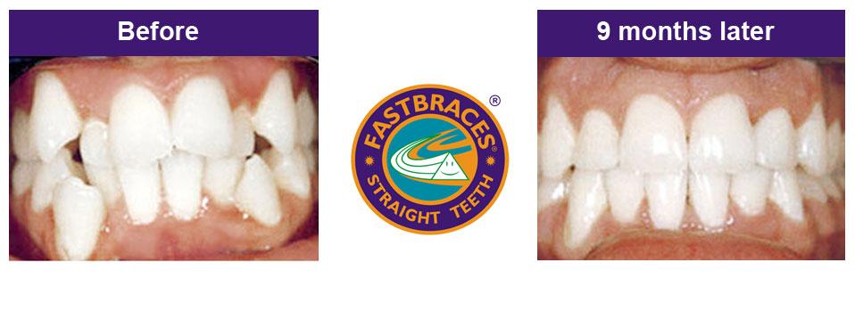 Fastbraces High Street Dental Care