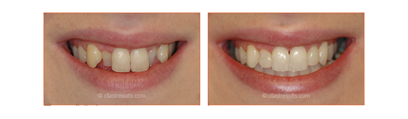 Cfast Tooth Alignment